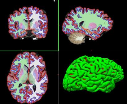 Investigadores cántabros han participado en un consorcio internacional para esta investigación sobre el cerebro