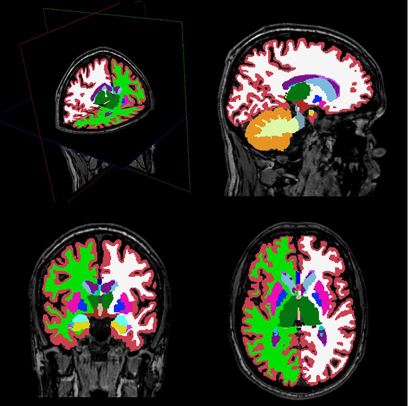 Imágenes del cerebro usadas en el estudio