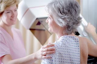 El rango de edad más común para la enfermedad es entre 50 y 69 años, aunque también se dan casos en mujeres jóvenes.